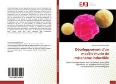 Bookcover of Développement d'un modèle murin de mélanome inductible