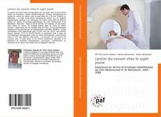 Buchcover von cancer du cavum chez le sujet jeune