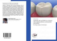 Portada del libro de Intérêts de la CFAO au niveau des restaurations coronaires partielles
