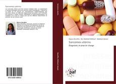 Sarcomes utérins kitap kapağı