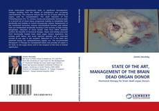 Bookcover of STATE OF THE ART, MANAGEMENT OF THE BRAIN DEAD ORGAN DONOR