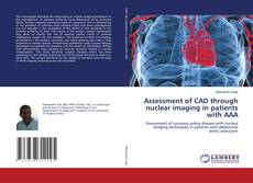 Buchcover von Assessment of CAD through nuclear imaging in patients with AAA