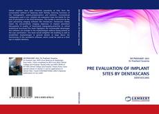 Bookcover of PRE EVALUATION OF IMPLANT SITES BY DENTASCANS
