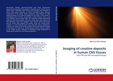 Bookcover of Imaging of creatine deposits in human CNS tissues