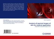 Bookcover of Analysis of spectral images of skin for medical application
