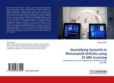 Bookcover of Quantifying Synovitis in Rheumatoid Arthritis using 3T MRI Scanning