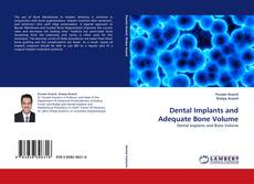 Bookcover of Dental Implants and Adequate Bone Volume