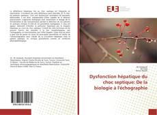 Borítókép a  Dysfonction hépatique du choc septique: De la biologie à l'échographie - hoz