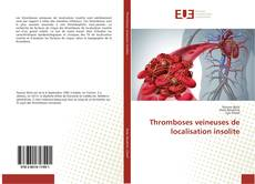 Bookcover of Thromboses veineuses de localisation insolite