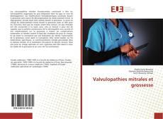 Copertina di Valvulopathies mitrales et grossesse