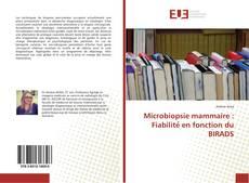 Bookcover of Microbiopsie mammaire : Fiabilité en fonction du BIRADS