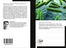 Copertina di Réactions paradoxales chez les patients non infectés par le VIH