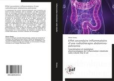 Обложка Effet secondaire inflammatoire d'une radiothérapie abdomino-pelvienne