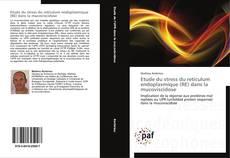 Bookcover of Etude du stress du reticulum endoplasmique (RE) dans la mucoviscidose
