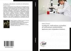 Bookcover of Icatibant: indications actuelles et utilisations potentielles
