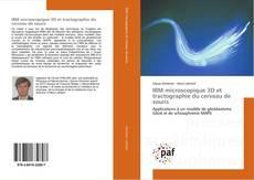Bookcover of IRM microscopique 3D et tractographie du cerveau de souris