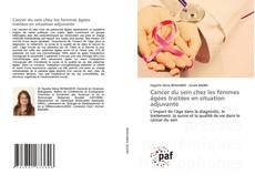 Couverture de Cancer du sein chez les femmes âgées traitées en situation adjuvante