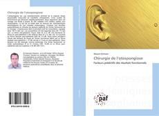Bookcover of Chirurgie de l'otospongiose