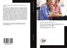 Bookcover of Prise en charge de l'asphyxie du perpartum à la MIG