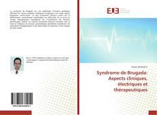 Couverture de Syndrome de Brugada: Aspects cliniques, électriques et thérapeutiques