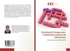 Traitement d'image pour la détection précoce de mélanomes kitap kapağı