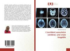 Bookcover of L'accident vasculaire cerebral, une vraie tragédie