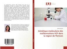 Génétique moléculaire des malformations VCF dans la région de Tlemcen的封面