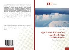 Buchcover von Apport de L'IRM dans les spondylodiscites tuberculeuses