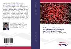 Valor pronóstico de la angiogenesis en carcinoma epidermoide de lengua的封面
