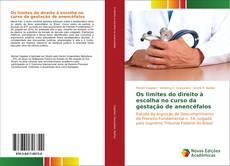 Couverture de Os limites do direito à escolha no curso da gestação de anencéfalos