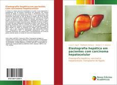Portada del libro de Elastografia hepática em pacientes com carcinoma hepatocelular