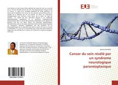 Bookcover of Cancer du sein révélé par un syndrome neurologique paranéoplasique