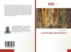 Bookcover of Cicatrisation des brûlures