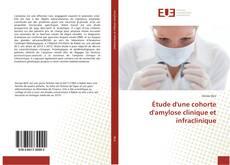 Copertina di Étude d'une cohorte d'amylose clinique et infraclinique