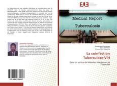 Copertina di La coinfection Tuberculose-VIH