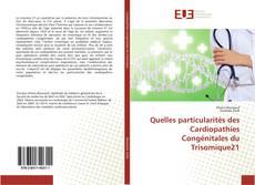 Bookcover of Quelles particularités des Cardiopathies Congénitales du Trisomique21