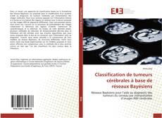 Couverture de Classification de tumeurs cérébrales à base de réseaux Bayésiens