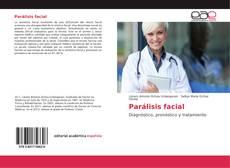 Bookcover of Parálisis facial