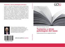 Buchcover von Tumores y otras patologías del bazo