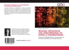 Portada del libro de Anemia refractaria con sideroblastos en anillo y trombocitosis