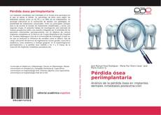 Capa do livro de Pérdida ósea periimplantaria