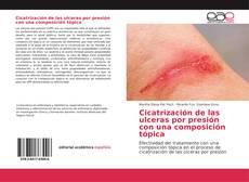 Portada del libro de Cicatrización de las ulceras por presión con una composición tópica