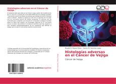 Couverture de Histologías adversas en el Cáncer de Vejiga
