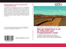 Bookcover of Rol de Galectina-1 en la infección por Trypanosoma cruzi