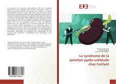 Bookcover of Le syndrome de la jonction pyélo-urétérale chez l'enfant