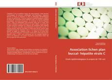 Buchcover von Association lichen plan buccal- hépatite virale C