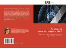 Bookcover of Antigénurie pneumococcique et BPCO