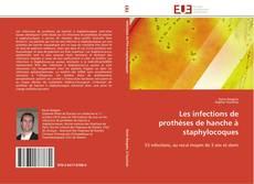 Capa do livro de Les infections de prothèses de hanche à staphylocoques