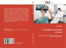 Buchcover von La dysplasie cémento osseuse
