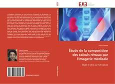 Capa do livro de Étude de la composition des calculs rénaux par l'imagerie médicale